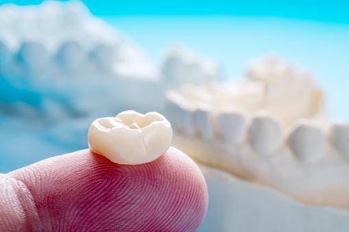 Dental Crowns Sebastopol