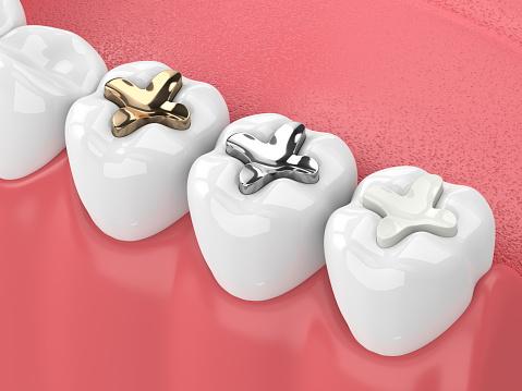 Tooth Fillings sebastopol