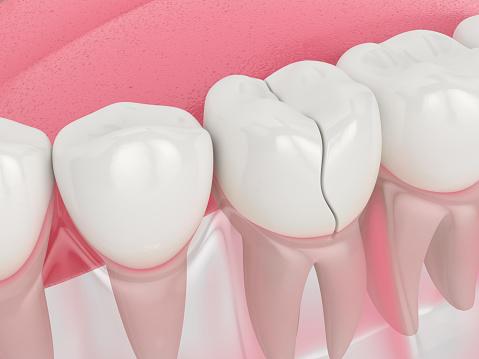 Dental Bonding Windsor