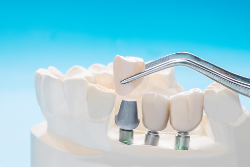 Dental Implants Windsor